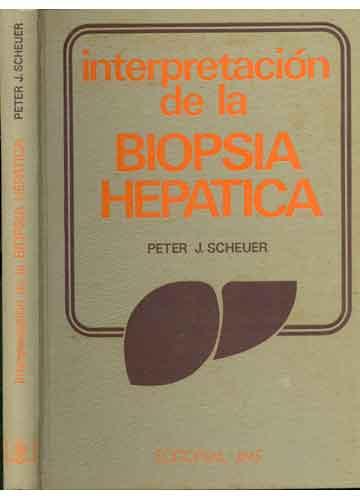 Interpretación de La Biopsia Hepatica