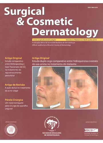 Surgical e Cosmetic Dermatology - Volume 2 Nº.2